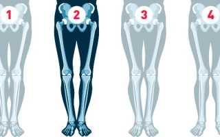 Упражнения для исправления ног. Исправление кривизны ног с помощью хирургических операций и физических упражнений. Как исправить ноги? Домашние упражнения