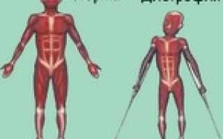 Что такое дистрофия стопы. Мышечная дистрофия: симптомы, причины, диагностика, лечение, восстановительный период и последствия для организма