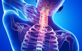 Можно ли удлинить шею? Лечебное вытягивание шейного отдела позвоночника по рекомендации врача на дому