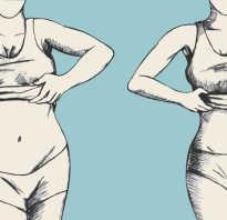Неравномерное распределение жира на теле. Жировые отложения. Методы коррекции жировых отложений