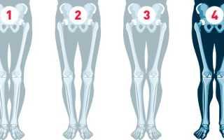 Почему у полных людей ноги иксом. Клинические проявления патологии. Комплекс упражнений для корректировки О-ног