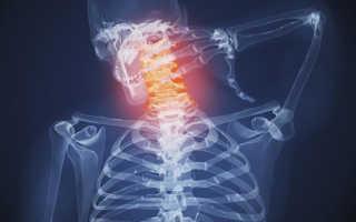 Как укрепить мышцы шеи. Как укреплять мышцы спины и шеи. Заболевания мускульных тканей