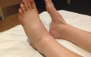 Одна нога отекает больше чем другая причины. Одна нога стала тоньше другой причины. Возможные причины появления отека одной ноги