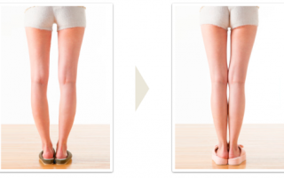 Упражнения для выпрямления ног. Исправление кривизны ног или как выпрямить кривые ноги? Виды деформации нижних конечностей