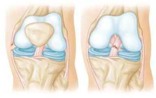 Порвались связки на ноге что делать. Как правильно диагностировать и лечить порванные связки на ноге