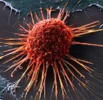 Позиция раком называется. Почему рак назвали раком? История термина и другие сведения. История наименования болезни.