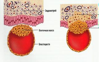 Названия асан йоги при гинекологических заболеваниях. Йогатерапия в гинекологии. Почему именно женщинам йога необходима