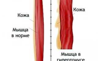 Мышцы спины в тонусе что делать. Как снять тонус мышц у взрослых. Какие мышцы участвуют в мышечном спазме
