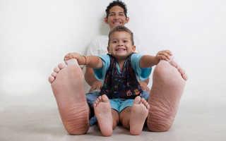 Самые большие ступни. Самые большие ноги в мире. Самые большие ноги из-за болезни